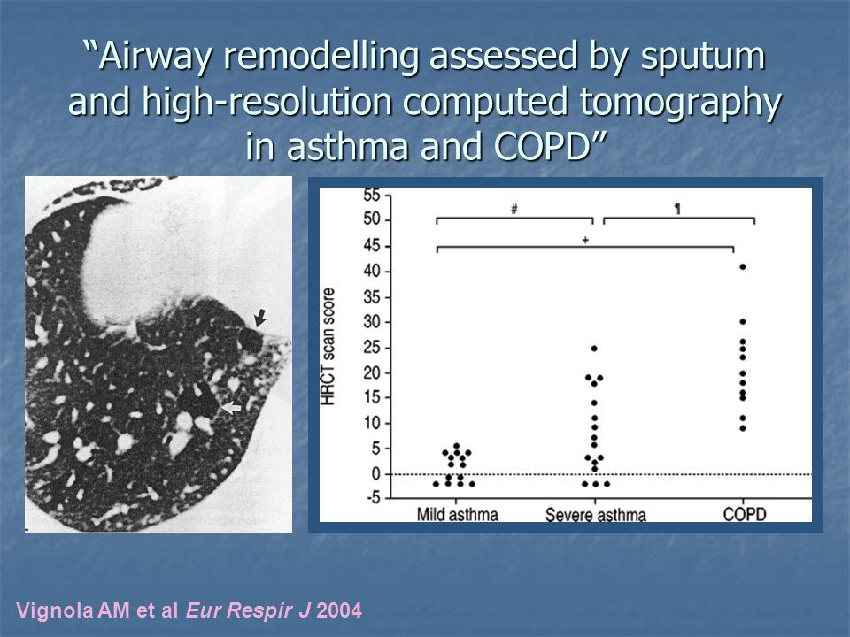 Airway remodelling assessed by sputum and high-resolution computed tomography in asthma and COPD