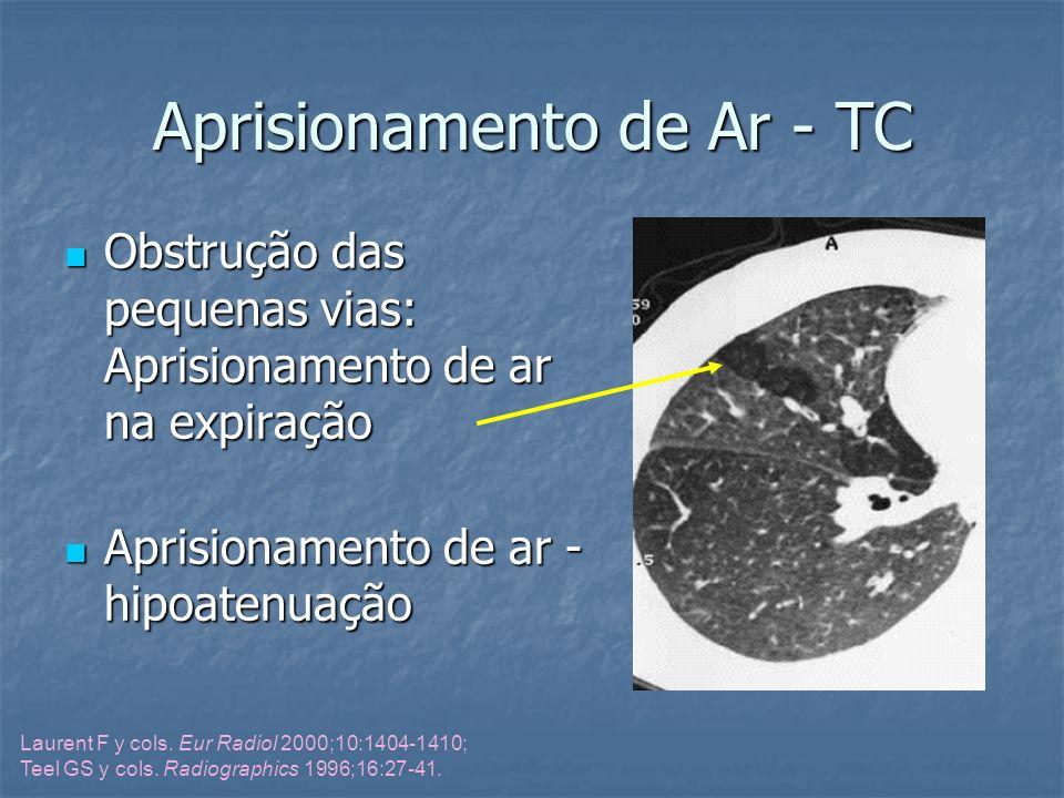 Aprisionamento de Ar - TC