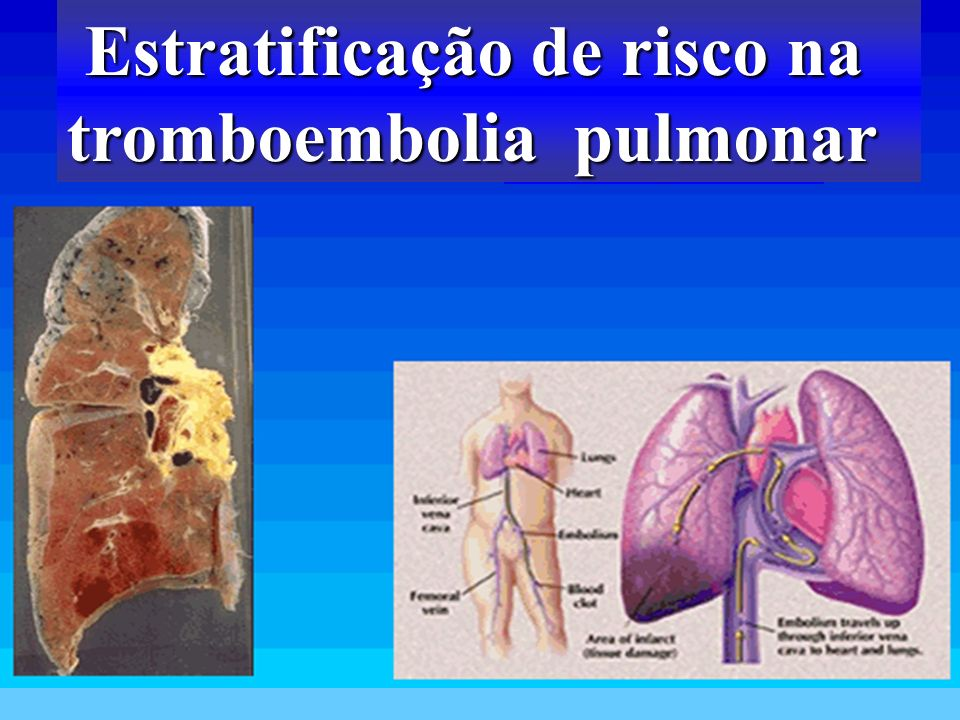 Estratificação de risco na tromboembolia pulmonar