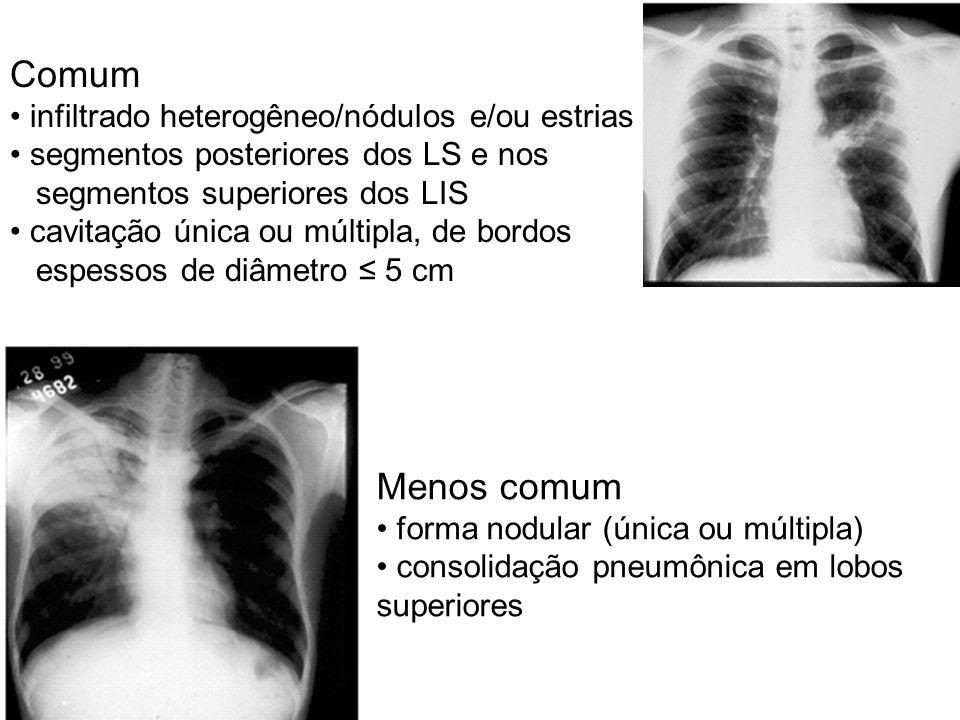 Comum Menos comum infiltrado heterogêneo/nódulos e/ou estrias