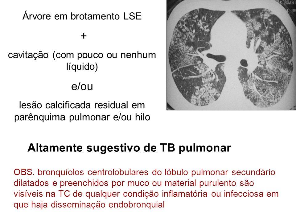 Altamente sugestivo de TB pulmonar