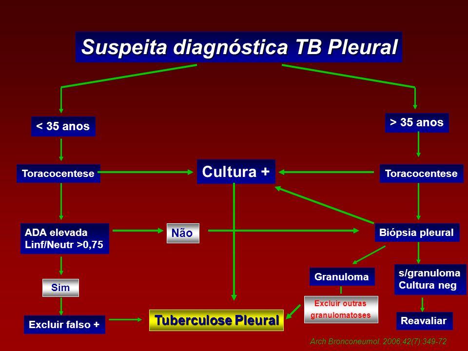 Suspeita diagnóstica TB Pleural
