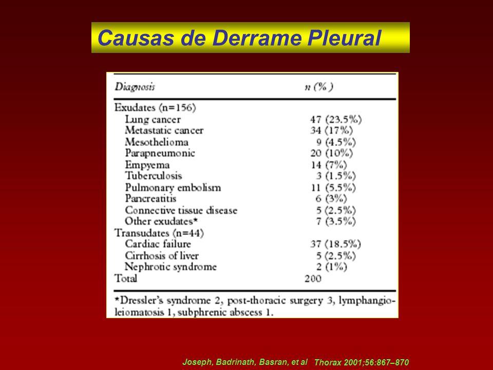 Causas de Derrame Pleural
