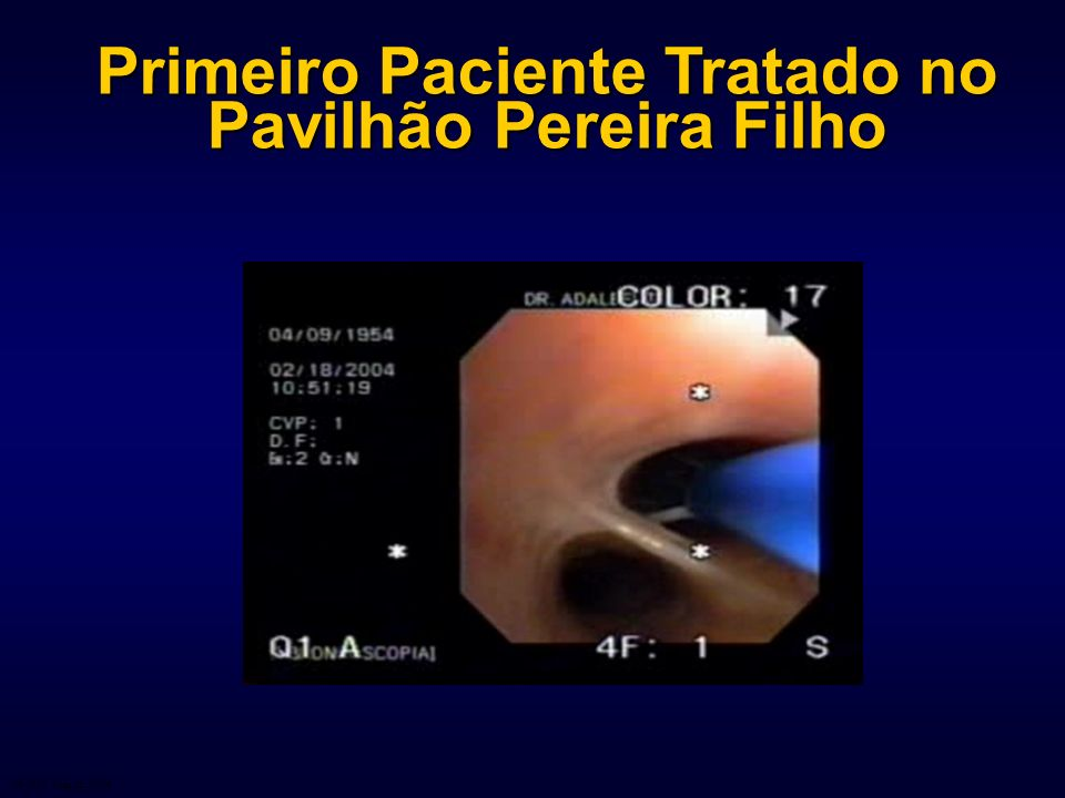 Primeiro Paciente Tratado no Pavilhão Pereira Filho