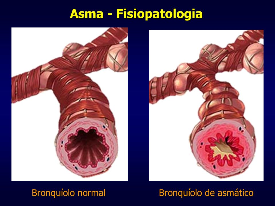 Bronquíolo de asmático
