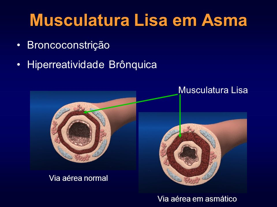 Musculatura Lisa em Asma