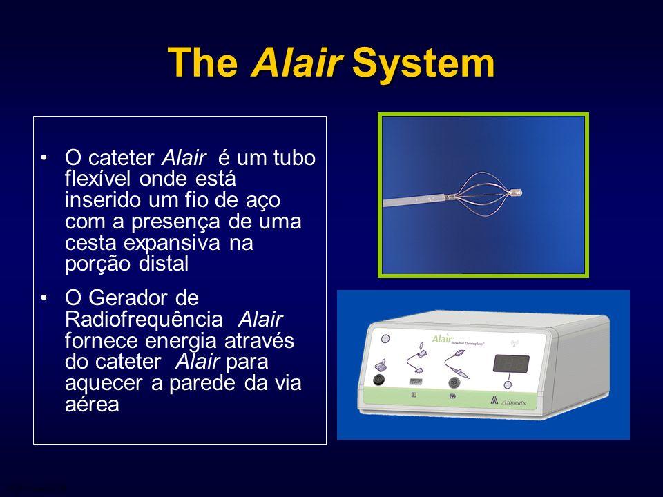 The Alair System O cateter Alair é um tubo flexível onde está inserido um fio de aço com a presença de uma cesta expansiva na porção distal.