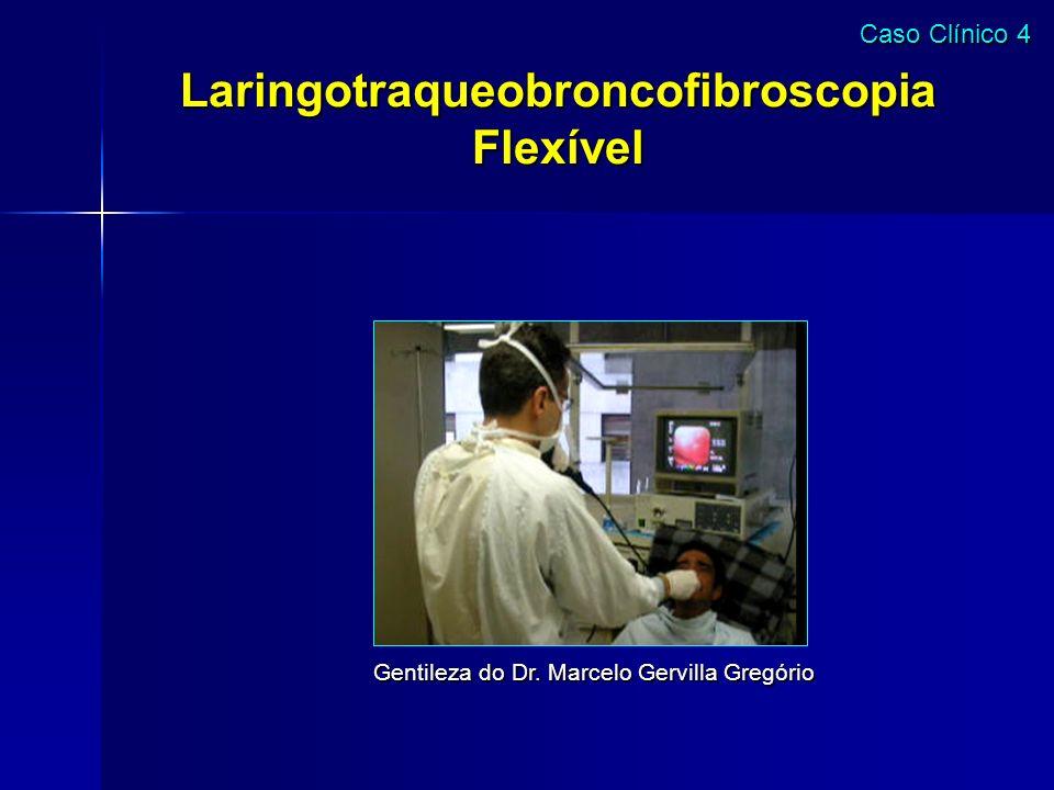 Laringotraqueobroncofibroscopia Flexível