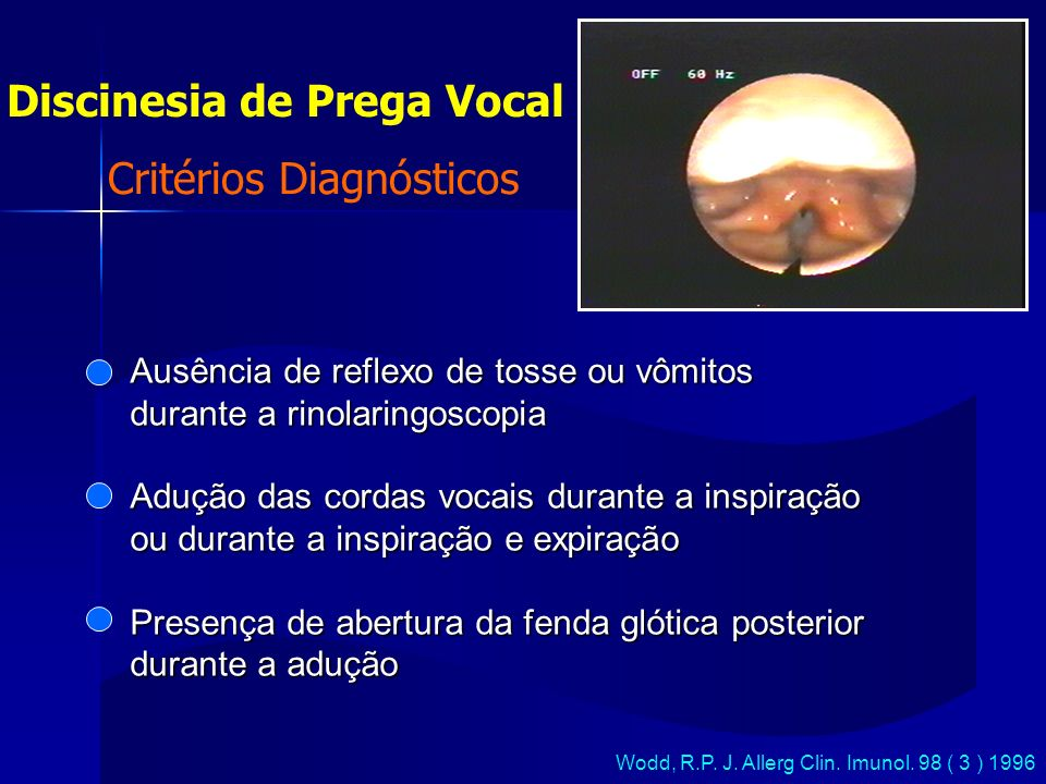 Discinesia de Prega Vocal