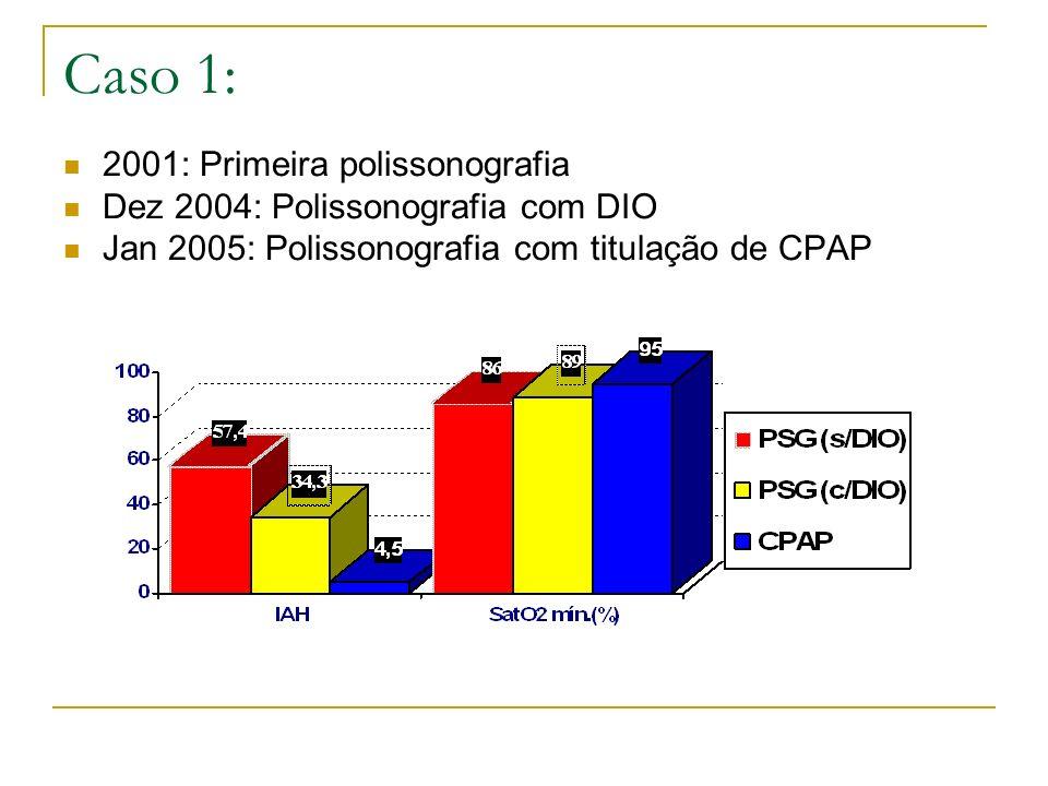 Caso 1: 2001: Primeira polissonografia
