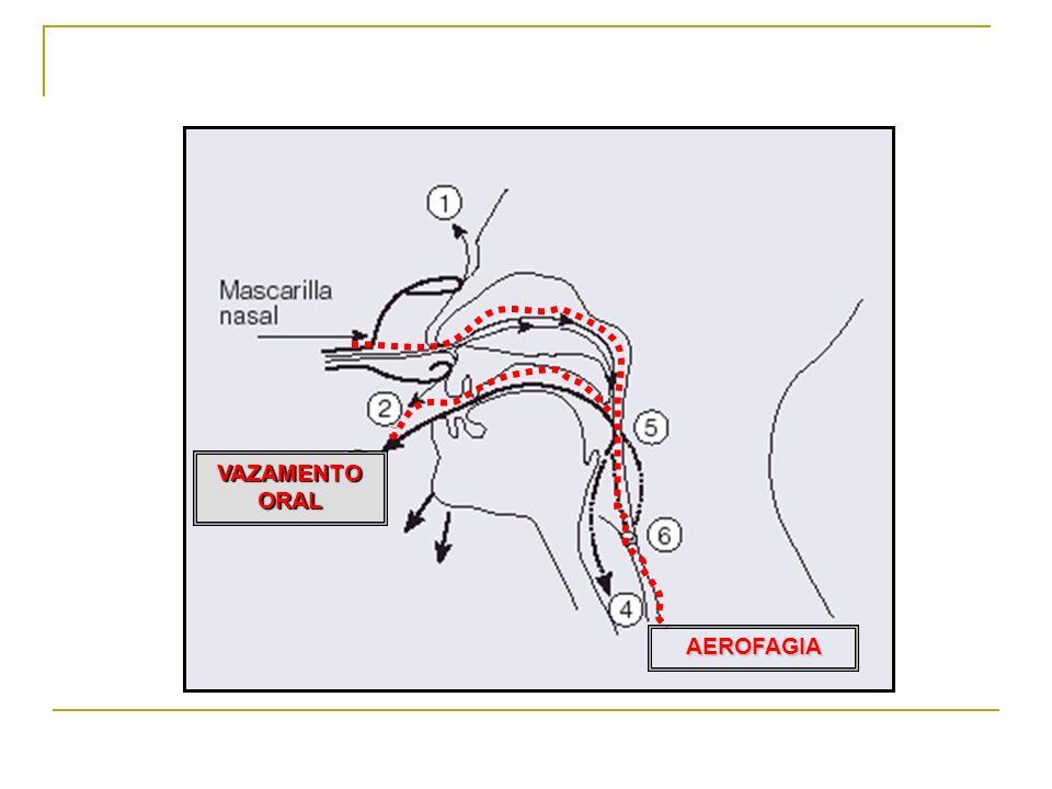 VAZAMENTO ORAL AEROFAGIA