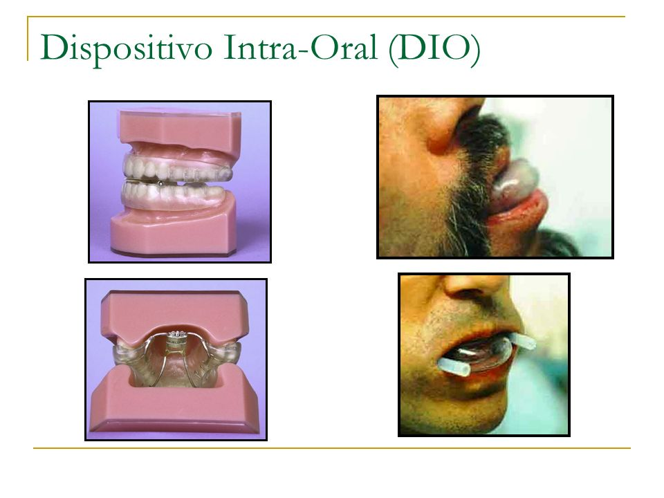 Dispositivo Intra-Oral (DIO)