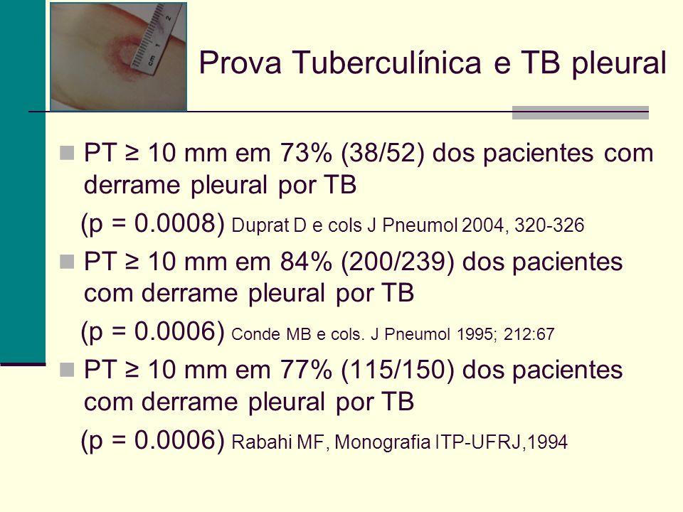 Prova Tuberculínica e TB pleural
