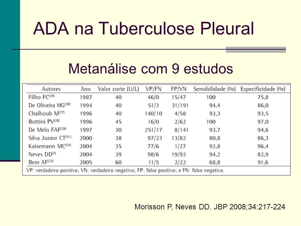 ADA na Tuberculose Pleural