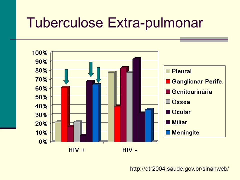 Tuberculose Extra-pulmonar