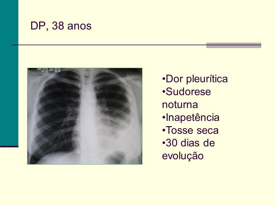 DP, 38 anos Dor pleurítica Sudorese noturna Inapetência Tosse seca