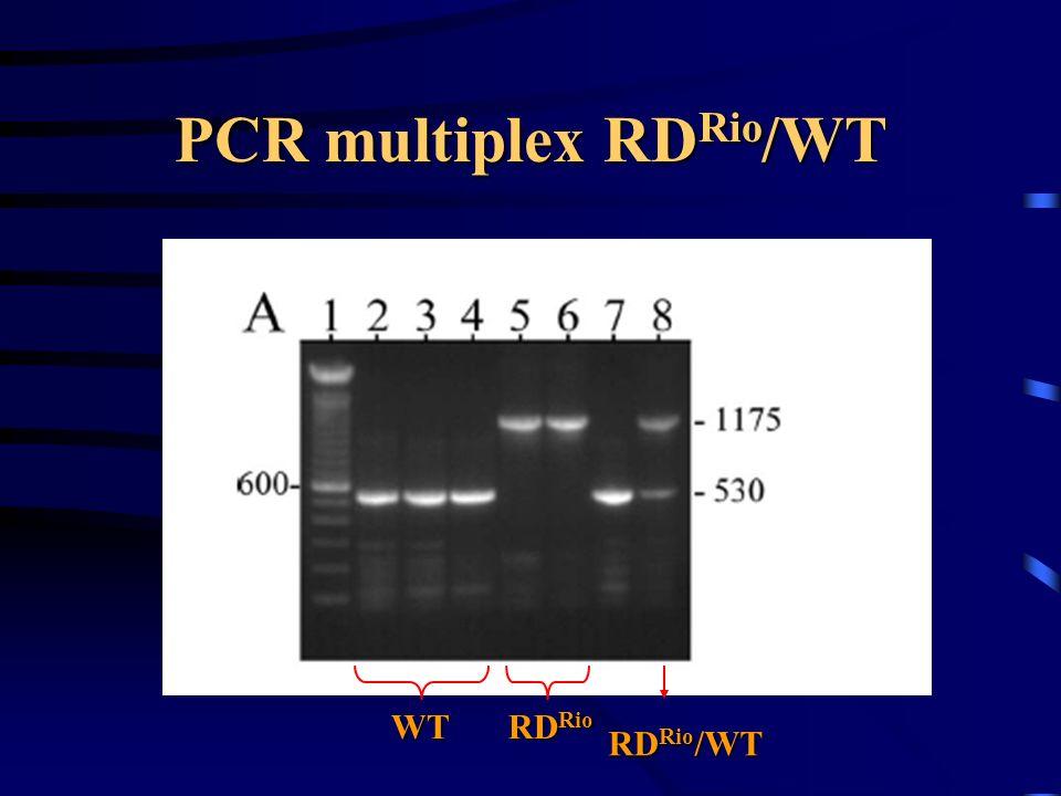 PCR multiplex RDRio/WT