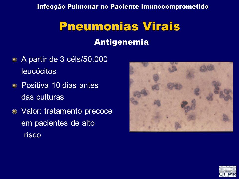 Pneumonias Virais Antigenemia A partir de 3 céls/50.000 leucócitos