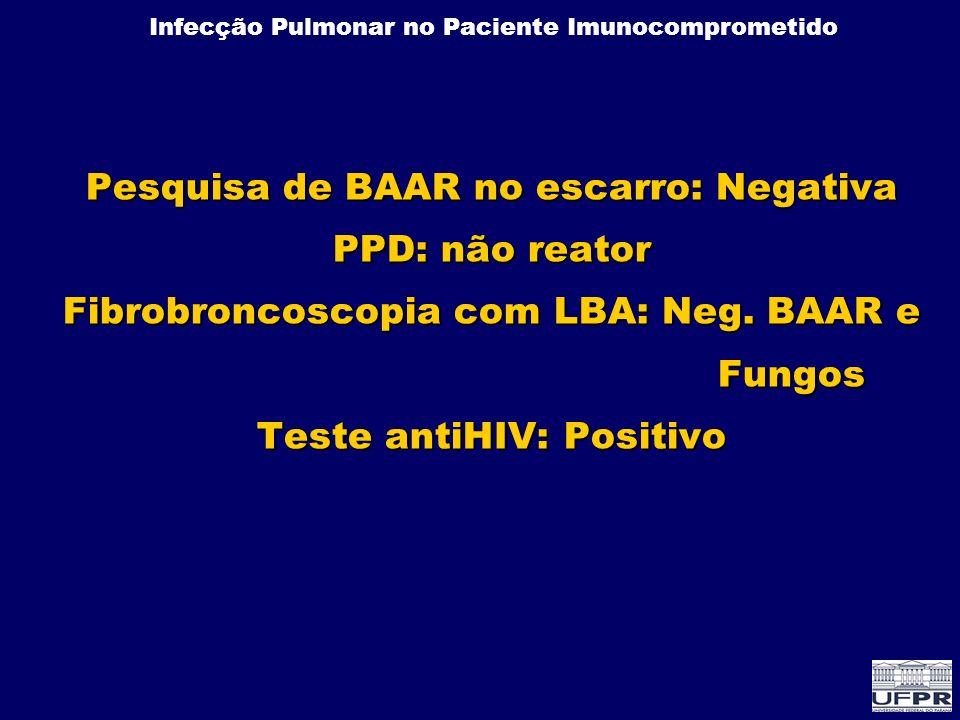 Pesquisa de BAAR no escarro: Negativa PPD: não reator Fibrobroncoscopia com LBA: Neg.