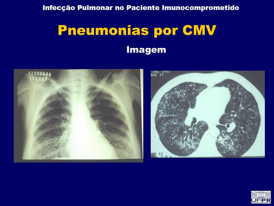 Pneumonias por CMV Imagem