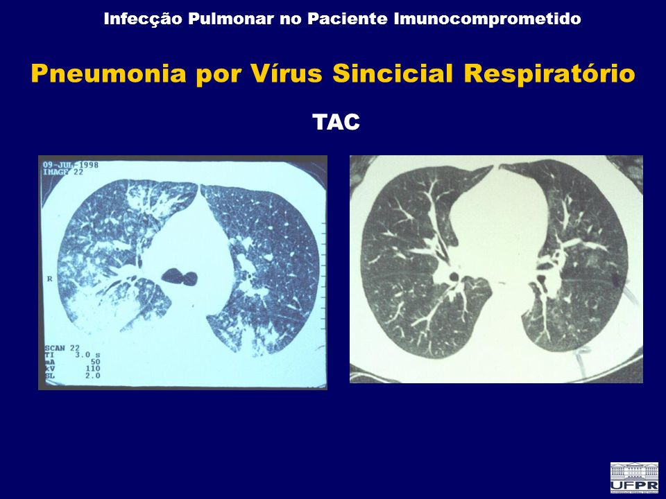 Pneumonia por Vírus Sincicial Respiratório