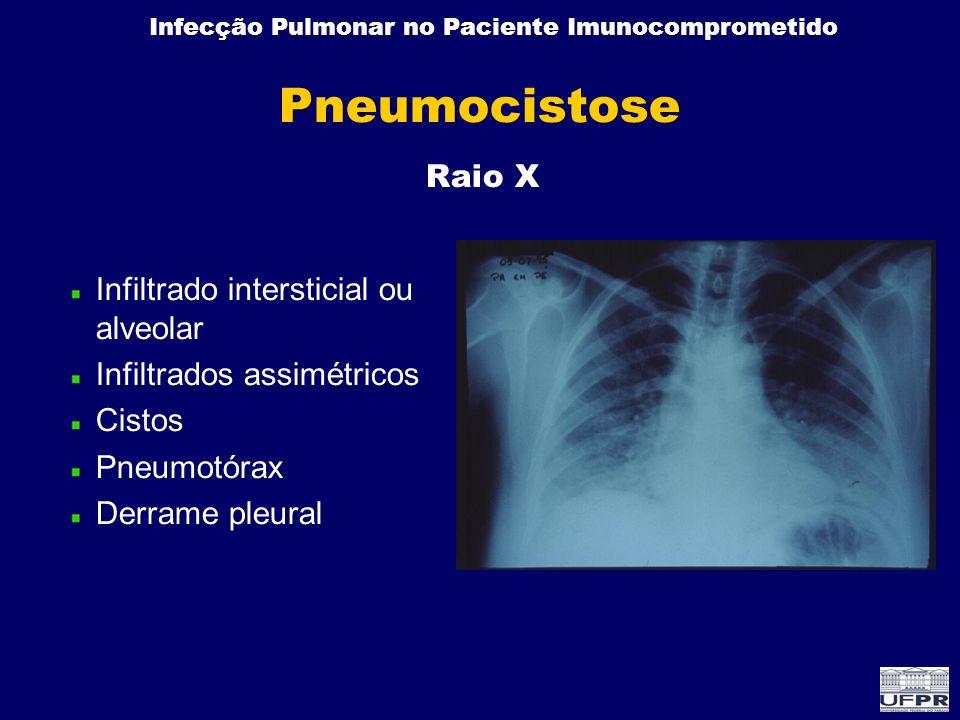 Pneumocistose Raio X Infiltrado intersticial ou alveolar