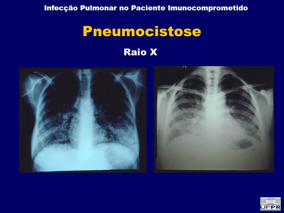 Pneumocistose Raio X