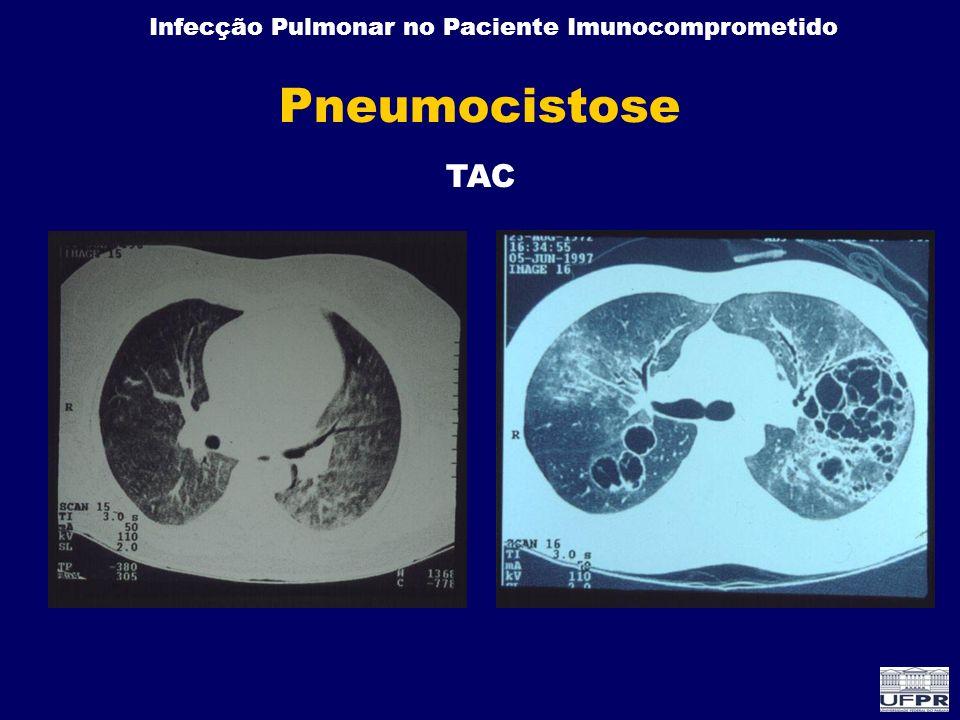 Pneumocistose TAC