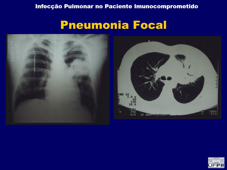 Pneumonia Focal