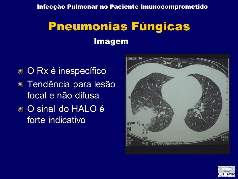 Pneumonias Fúngicas O Rx é inespecífico