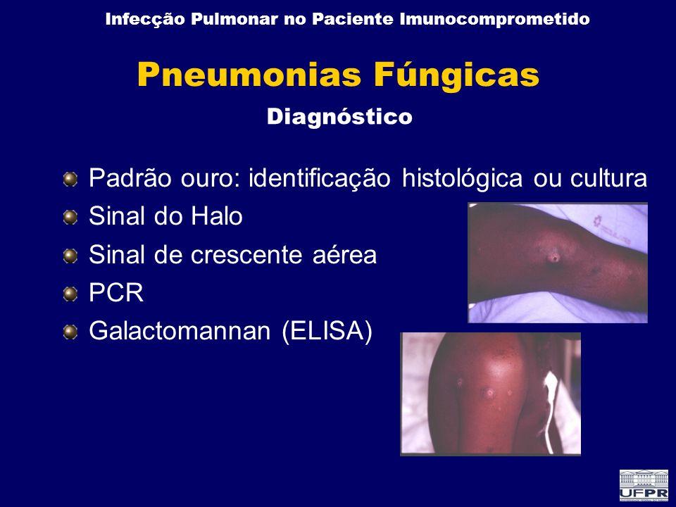 Pneumonias Fúngicas Padrão ouro: identificação histológica ou cultura