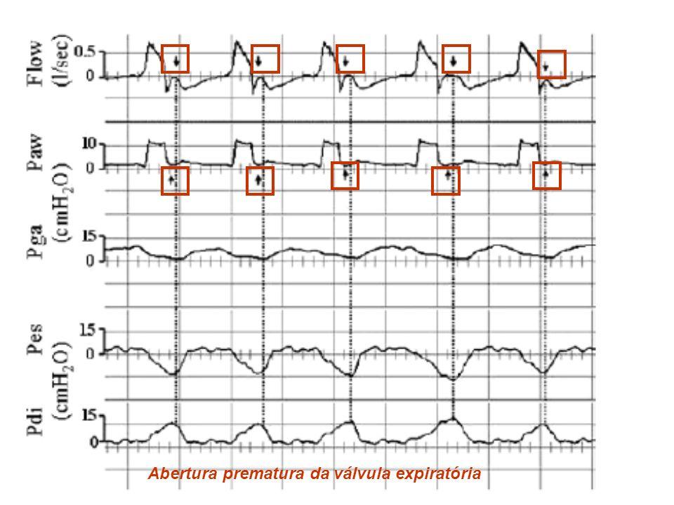 Abertura prematura da válvula expiratória