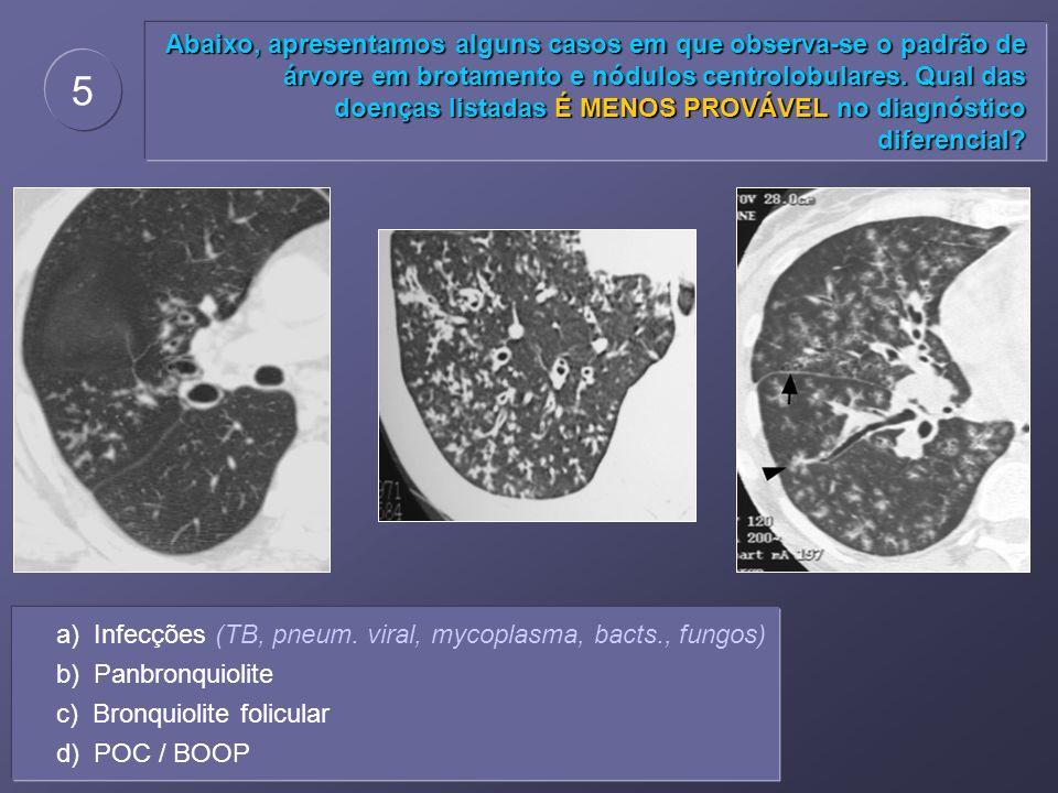 Abaixo, apresentamos alguns casos em que observa-se o padrão de árvore em brotamento e nódulos centrolobulares. Qual das doenças listadas É MENOS PROVÁVEL no diagnóstico diferencial