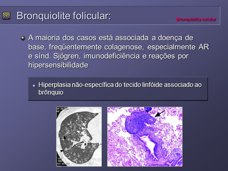 Bronquiolite folicular: Bronquiolite celular