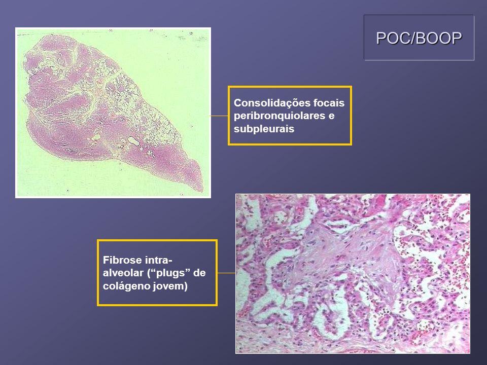 POC/BOOP Consolidações focais peribronquiolares e subpleurais