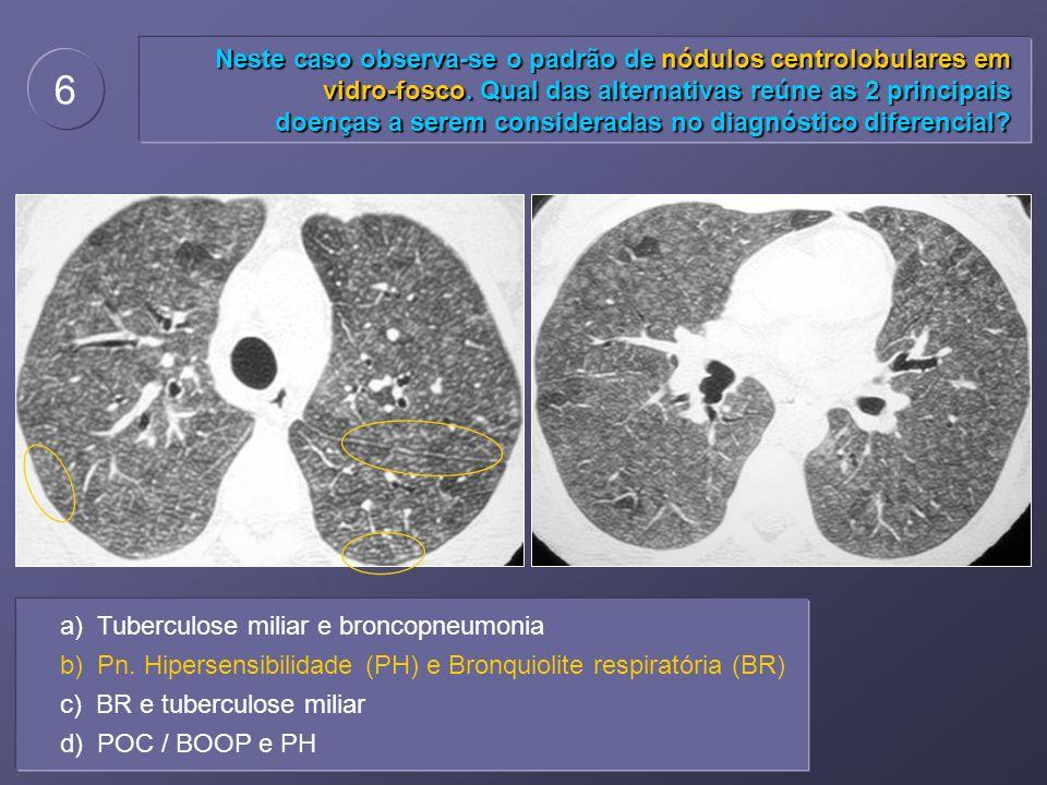Neste caso observa-se o padrão de nódulos centrolobulares em vidro-fosco. Qual das alternativas reúne as 2 principais doenças a serem consideradas no diagnóstico diferencial