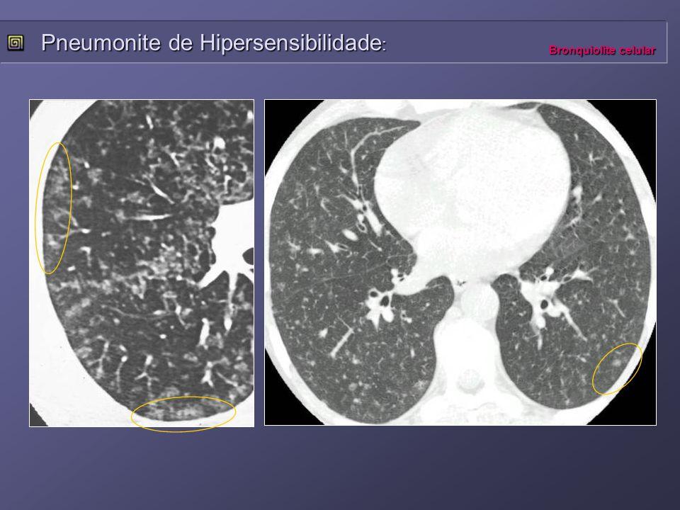 Pneumonite de Hipersensibilidade: Bronquiolite celular