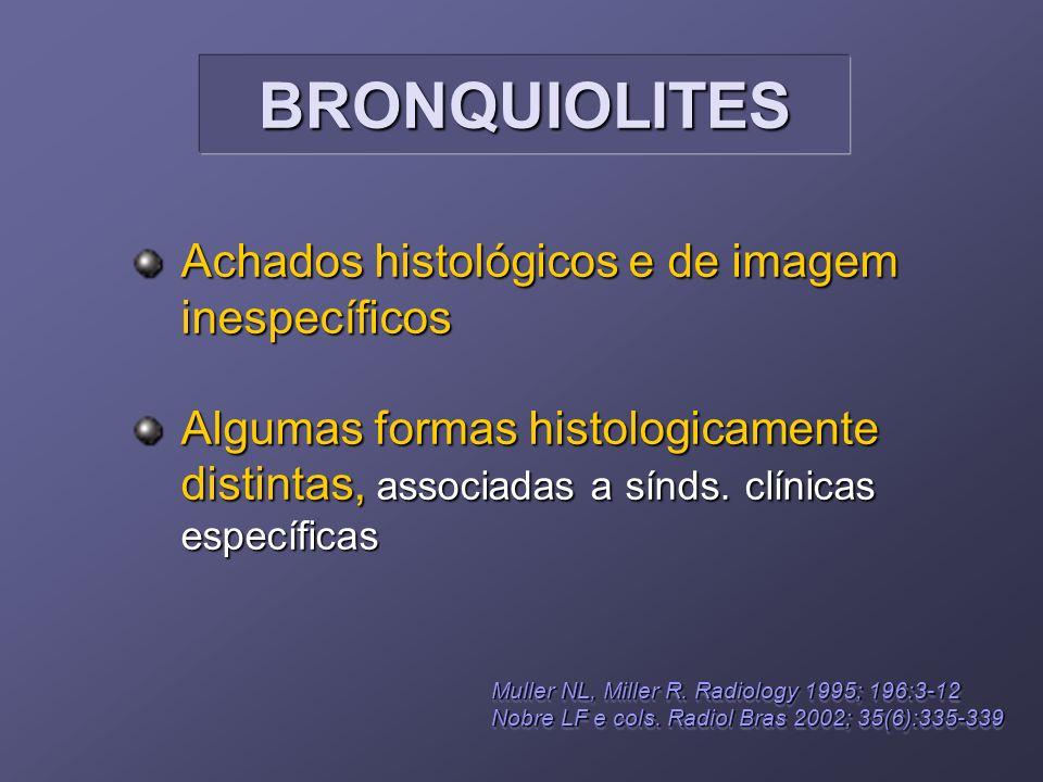 BRONQUIOLITES Achados histológicos e de imagem inespecíficos
