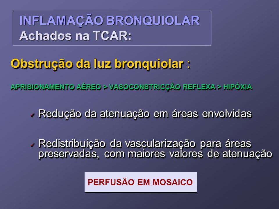 INFLAMAÇÃO BRONQUIOLAR Achados na TCAR: