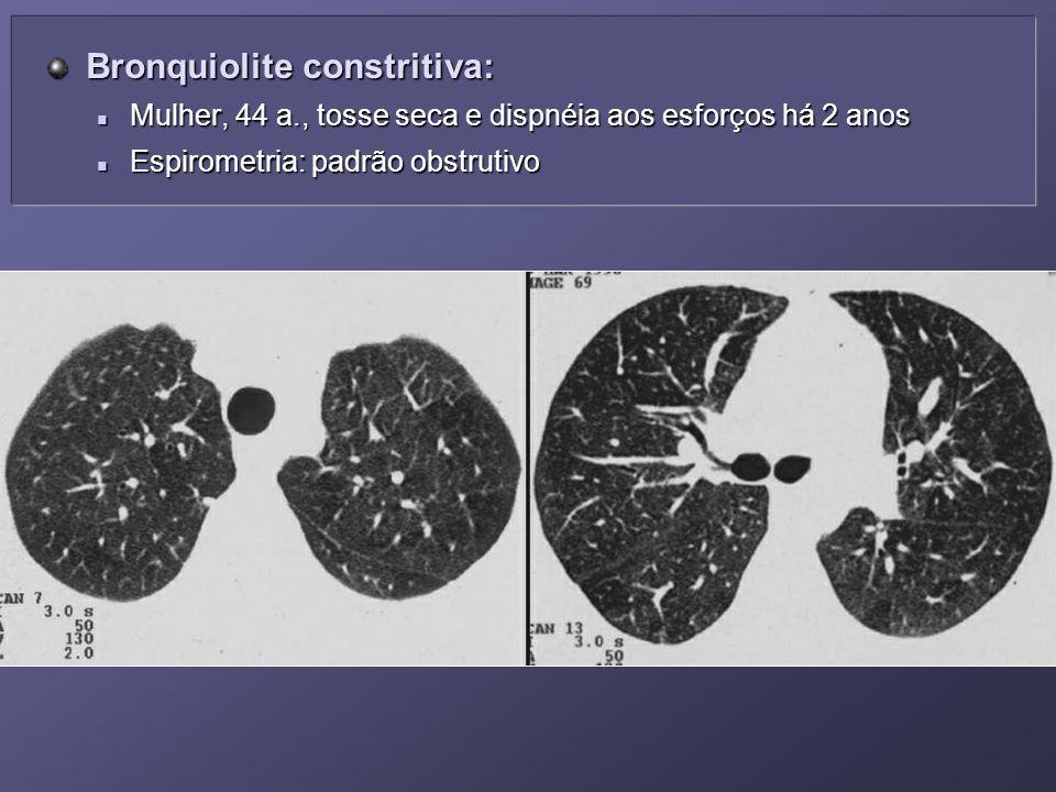 Bronquiolite constritiva: