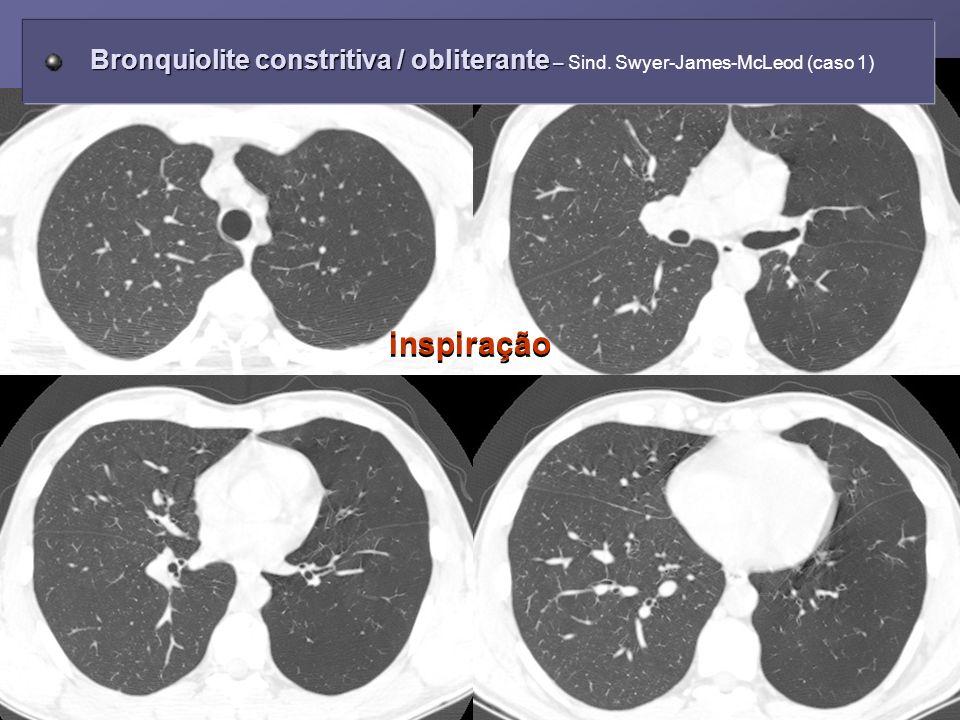 Bronquiolite constritiva / obliterante – Sind