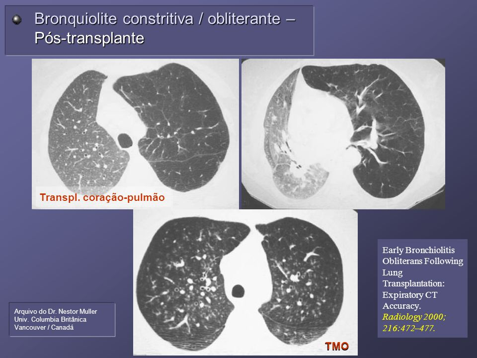 Bronquiolite constritiva / obliterante – Pós-transplante