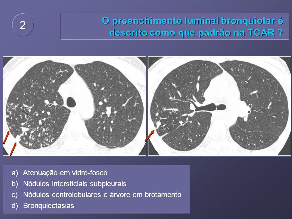 2 O preenchimento luminal bronquiolar é descrito como que padrão na TCAR Atenuação em vidro-fosco.