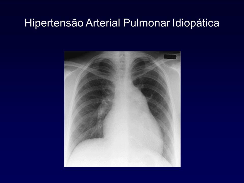 Hipertensão Arterial Pulmonar Idiopática