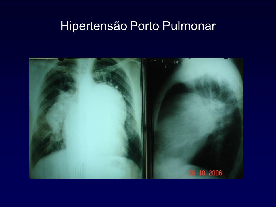 Hipertensão Porto Pulmonar