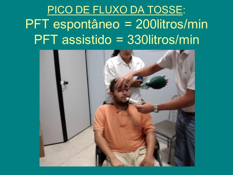 PICO DE FLUXO DA TOSSE: PFT espontâneo = 200litros/min PFT assistido = 330litros/min