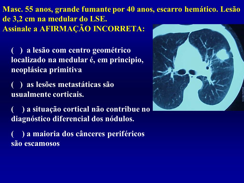 ( ) as lesões metastáticas são usualmente corticais.