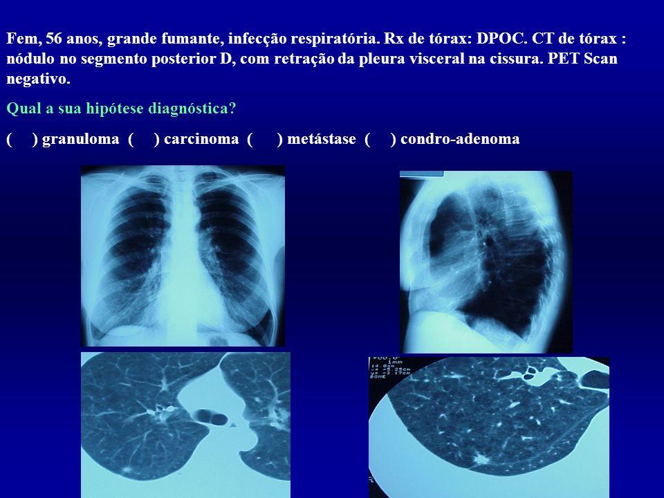 Fem, 56 anos, grande fumante, infecção respiratória. Rx de tórax: DPOC