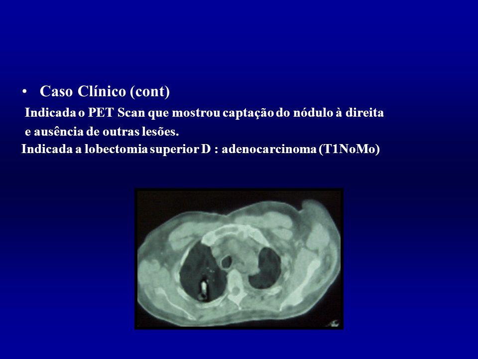 Caso Clínico (cont) Indicada o PET Scan que mostrou captação do nódulo à direita. e ausência de outras lesões.