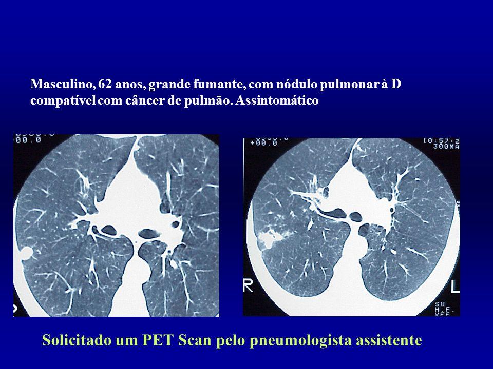 Solicitado um PET Scan pelo pneumologista assistente